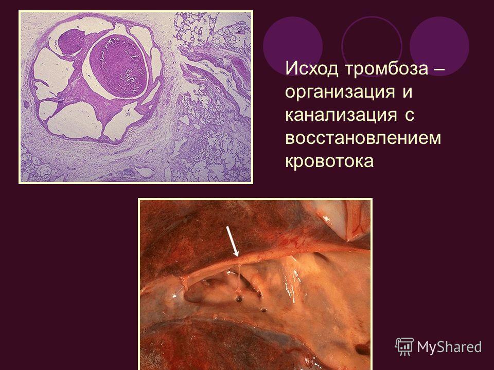 Исход тромбоза – организация и канализация с восстановлением кровотока