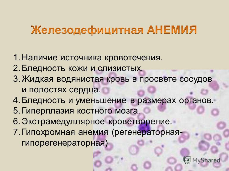 1.Наличие источника кровотечения. 2.Бледность кожи и слизистых. 3.Жидкая водянистая кровь в просвете сосудов и полостях сердца. 4.Бледность и уменьшение в размерах органов. 5.Гиперплазия костного мозга. 6.Экстрамедуллярное кроветворение. 7.Гипохромна