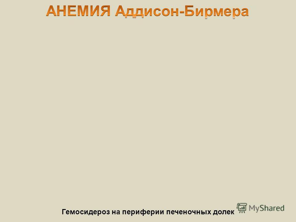 Гемосидероз на периферии печеночных долек