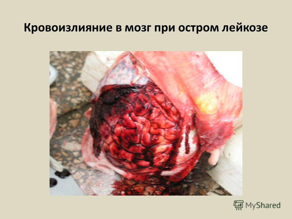 Кровоизлияние в мозг при остром лейкозе