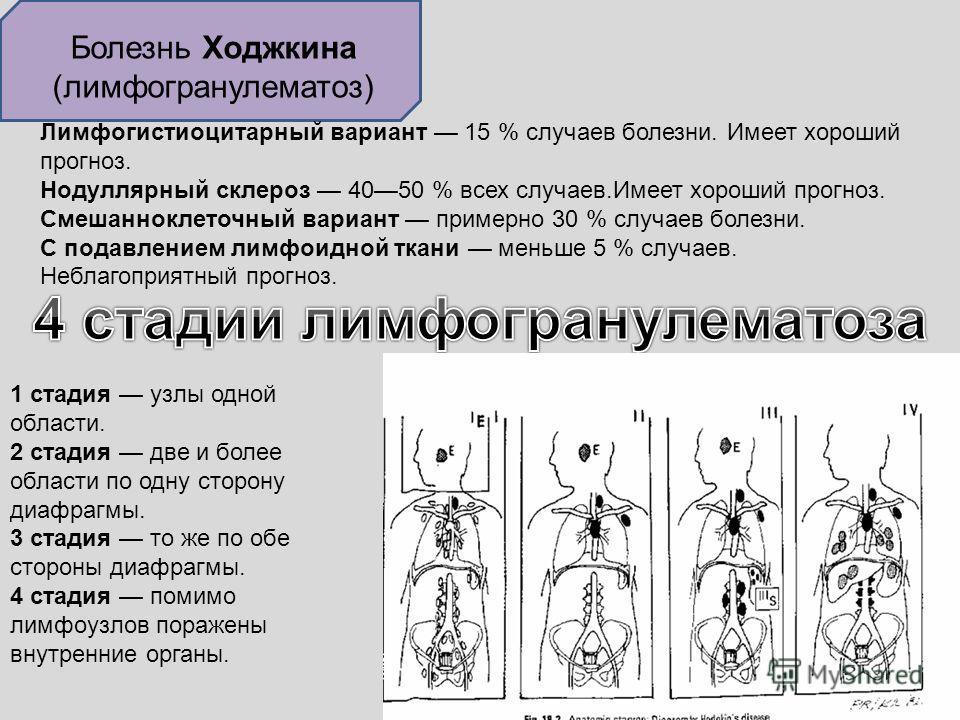 Болезнь Ходжкина (лимфогранулематоз) Лимфогистиоцитарный вариант 15 % случаев болезни. Имеет хороший прогноз. Нодуллярный склероз 4050 % всех случаев.Имеет хороший прогноз. Смешанноклеточный вариант примерно 30 % случаев болезни. С подавлением лимфои