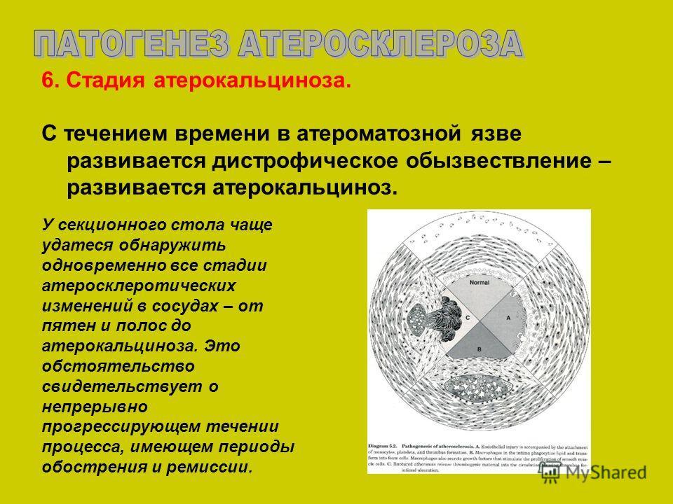 6. Стадия атерокальциноза. С течением времени в атероматозной язве развивается дистрофическое обызвествление – развивается атерокальциноз. У секционного стола чаще удатеся обнаружить одновременно все стадии атеросклеротических изменений в сосудах – о
