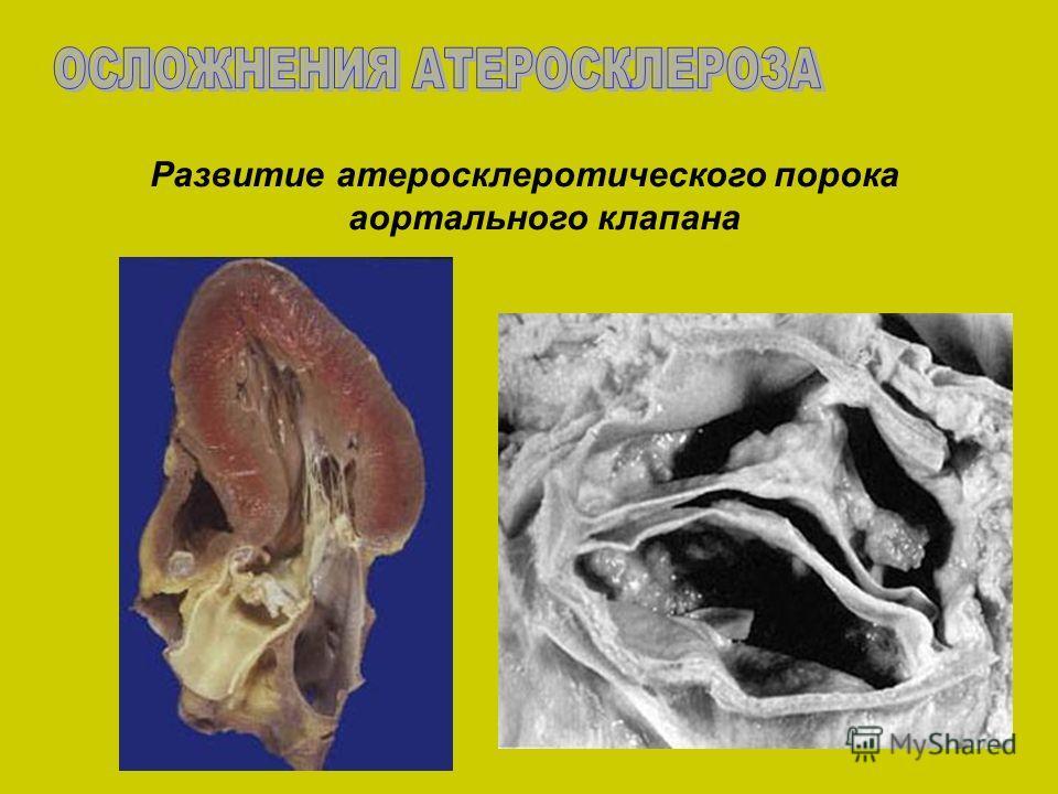Развитие атеросклеротического порока аортального клапана