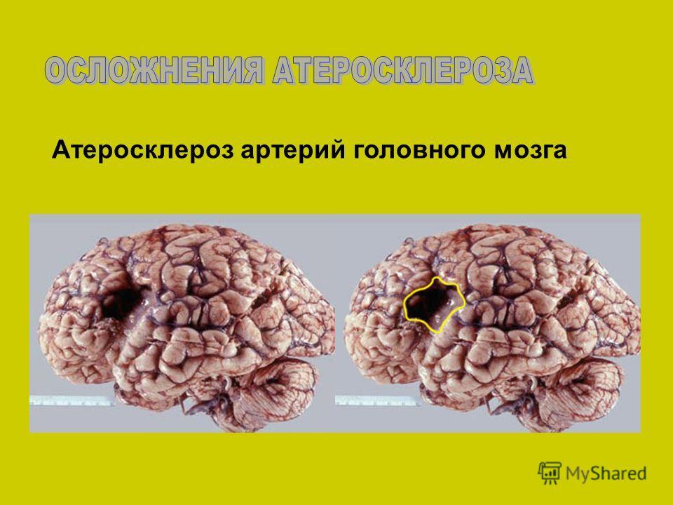 Атеросклероз артерий головного мозга