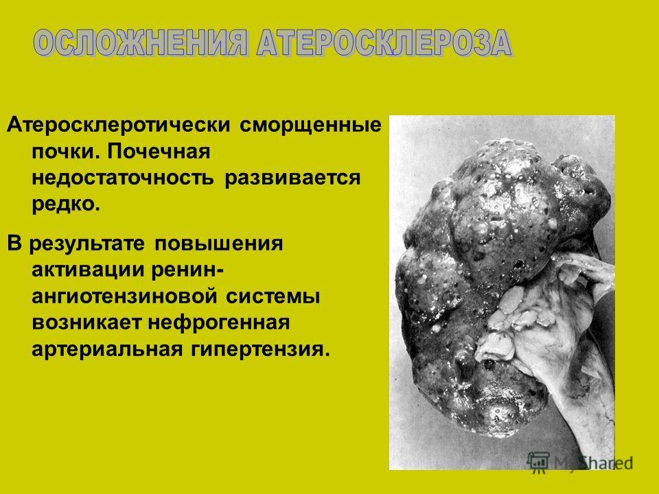 Атеросклеротически сморщенные почки. Почечная недостаточность развивается редко. В результате повышения активации ренин- ангиотензиновой системы возникает нефрогенная артериальная гипертензия.