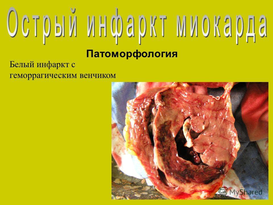 Патоморфология Белый инфаркт с геморрагическим венчиком
