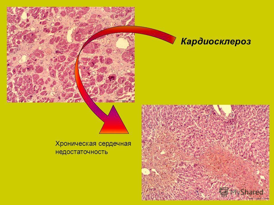 Кардиосклероз Хроническая сердечная недостаточность