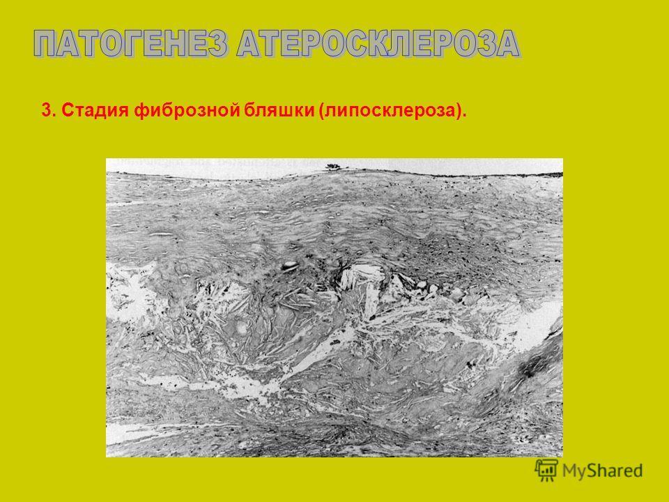 3. Стадия фиброзной бляшки (липосклероза).