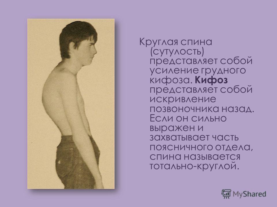 Круглая спина (сутулость) представляет собой усиление грудного кифоза. Кифоз представляет собой искривление позвоночника назад. Если он сильно выражен и захватывает часть поясничного отдела, спина называется тотально-круглой.
