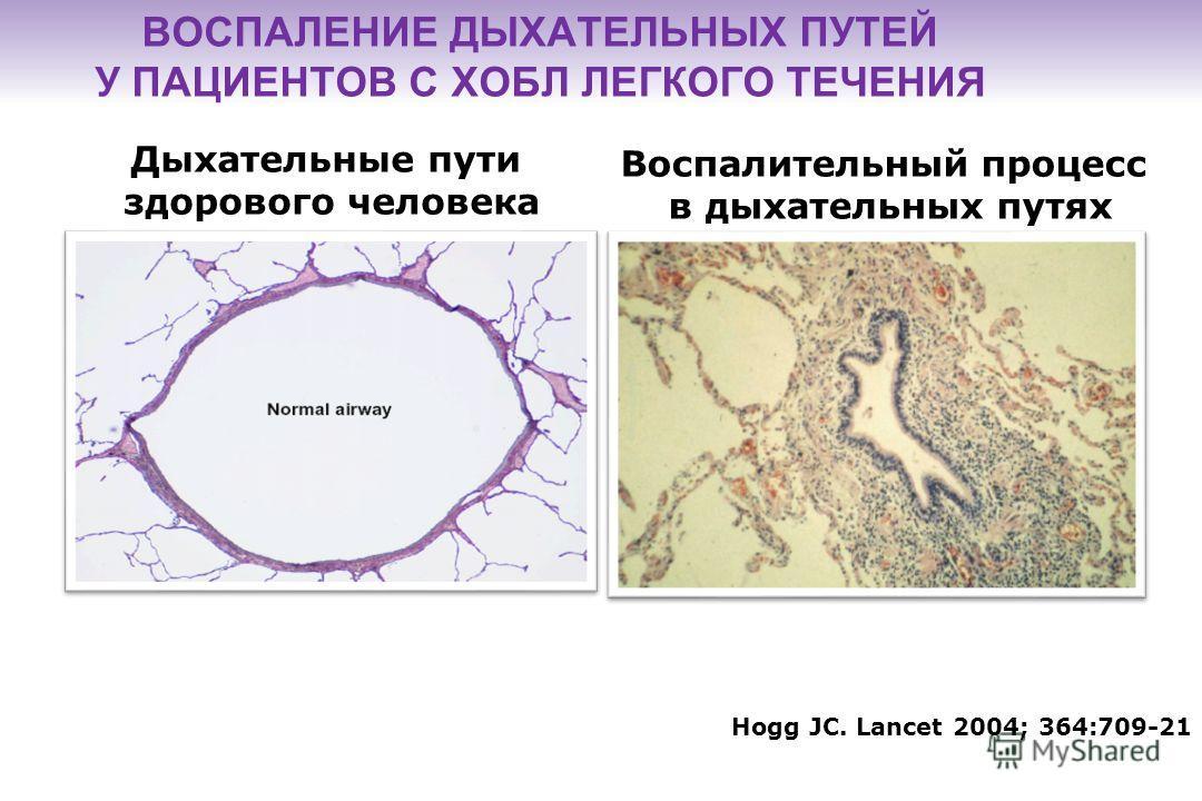 1. Agusti AG et al. Respir Med 2003 2. Rennard. Eu Respir Rev 2007 Клетки, участвующие в процессе воспаления, высвобождают медиаторы воспаления, обладающие деструктивными свойствами (например, ИЛ-8, ФНО ), которые играют роль в развитии : других сопу