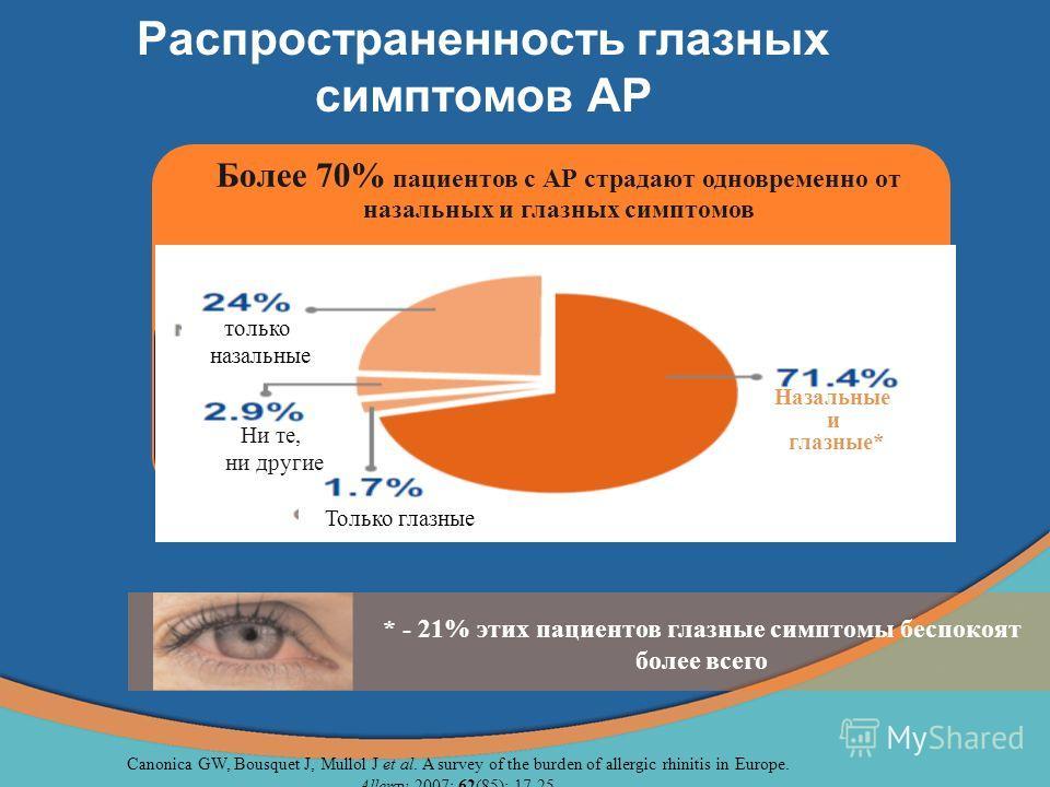 Распространенность глазных симптомов АР Более 70% пациентов с АР страдают одновременно от назальных и глазных симптомов только назальные Ни те, ни другие Только глазные Назальные и глазные* * - 21% этих пациентов глазные симптомы беспокоят более всег