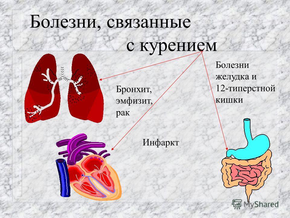 Болезни, связанные с курением Бронхит, эмфизит, рак Инфаркт Болезни желудка и 12-типерстной кишки