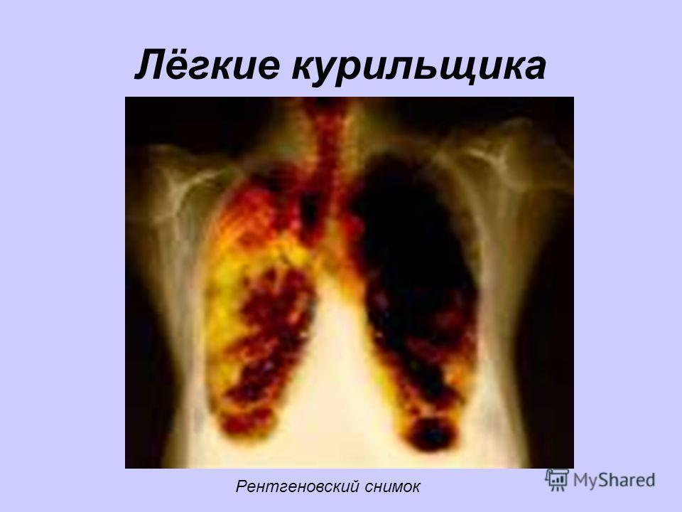Лёгкие курильщика Рентгеновский снимок
