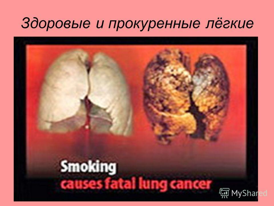 Здоровые и прокуренные лёгкие