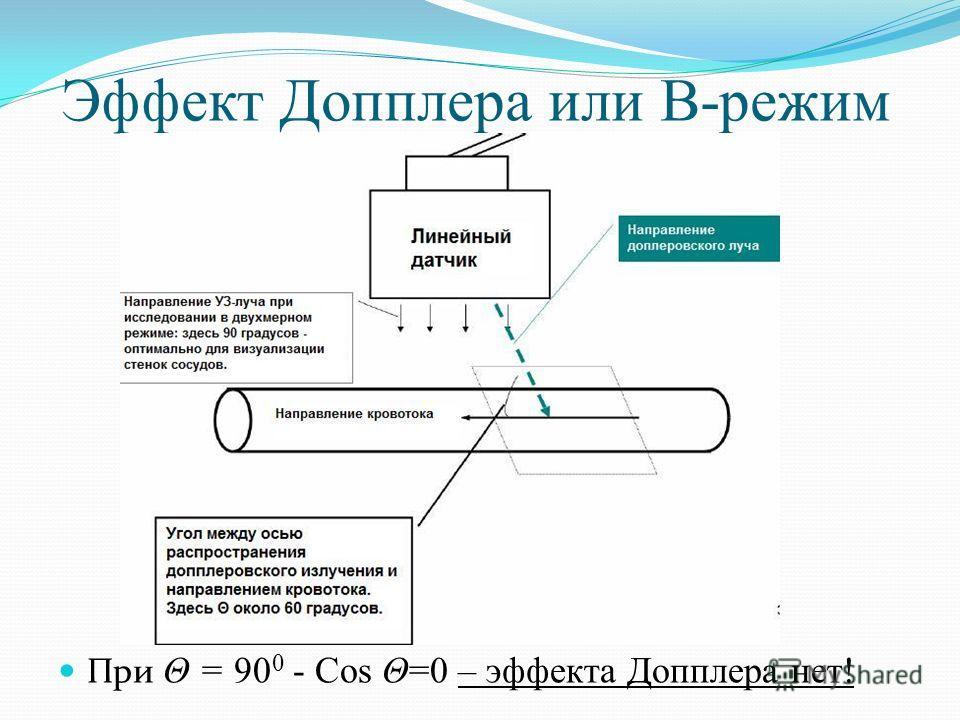 Эффект Допплера или В-режим При Θ = 90 0 - Cos Θ=0 – эффекта Допплера нет!