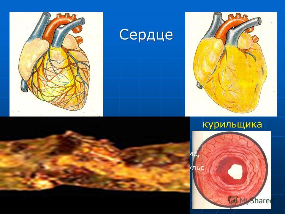 Клетки крови здорового человека Клетки крови курильщика