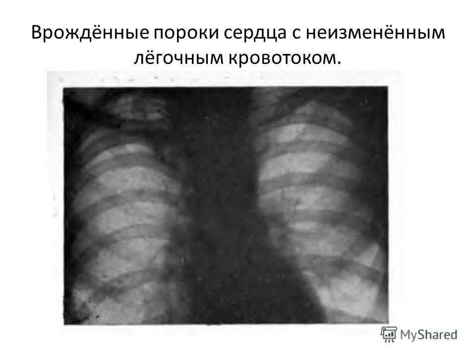 Врождённые пороки сердца с неизменённым лёгочным кровотоком.