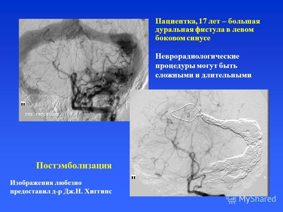 Пациентка, 17 лет – большая дуральная фистула в левом боковом синусе Постэмболизация Изображения любезно предоставил д-р Дж.Н. Хиггинс Неврорадиологические процедуры могут быть сложными и длительными