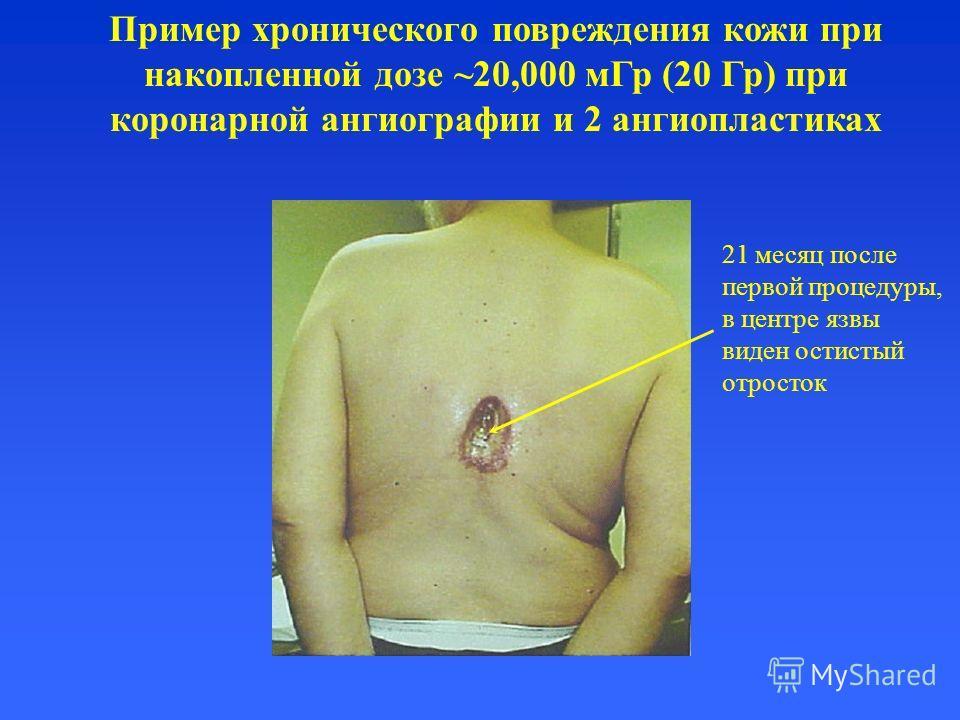 Пример хронического повреждения кожи при накопленной дозе ~20,000 мГр (20 Гр) при коронарной ангиографии и 2 ангиопластиках 21 месяц после первой процедуры, в центре язвы виден остистый отросток