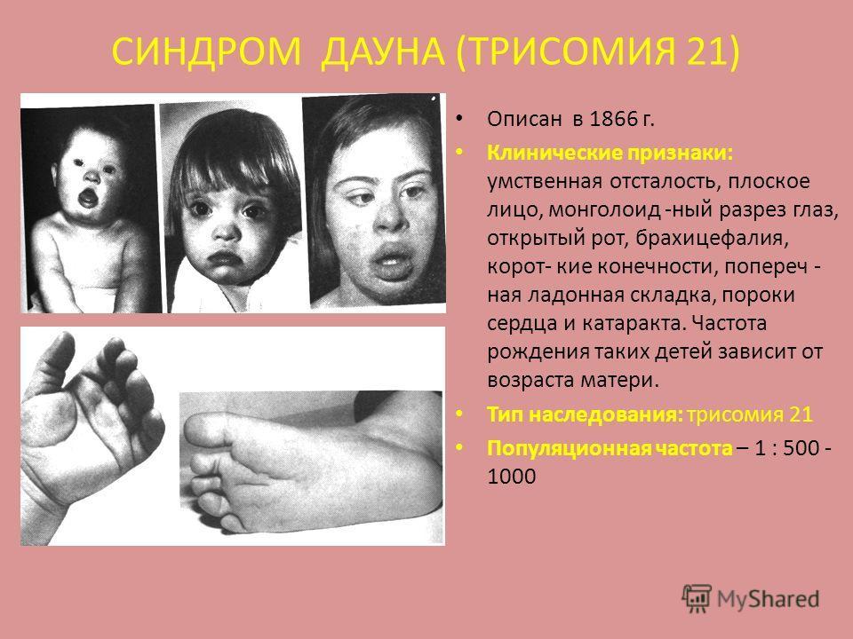 СИНДРОМ ДАУНА (ТРИСОМИЯ 21) Описан в 1866 г. Клинические признаки: умственная отсталость, плоское лицо, монголоид -ный разрез глаз, открытый рот, брахицефалия, корот- кие конечности, попереч - ная ладонная складка, пороки сердца и катаракта. Частота