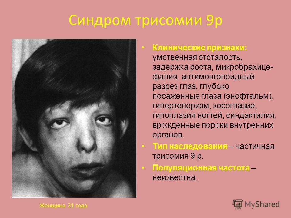 Синдром трисомии 9р Клинические признаки: умственная отсталость, задержка роста, микробрахице- фалия, антимонголоидный разрез глаз, глубоко посаженные глаза (энофтальм), гипертелоризм, косоглазие, гипоплазия ногтей, синдактилия, врожденные пороки вну