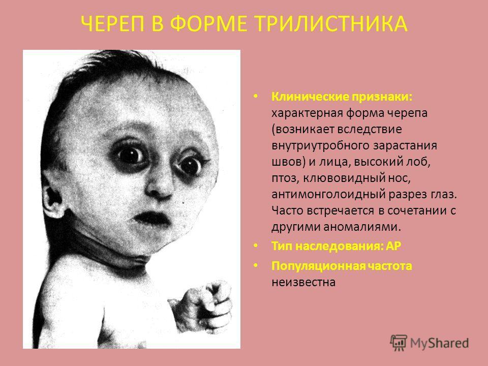 ЧЕРЕП В ФОРМЕ ТРИЛИСТНИКА Клинические признаки: характерная форма черепа (возникает вследствие внутриутробного зарастания швов) и лица, высокий лоб, птоз, клювовидный нос, антимонголоидный разрез глаз. Часто встречается в сочетании с другими аномалия