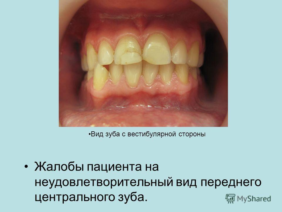 Жалобы пациента на неудовлетворительный вид переднего центрального зуба. Вид зуба с вестибулярной стороны