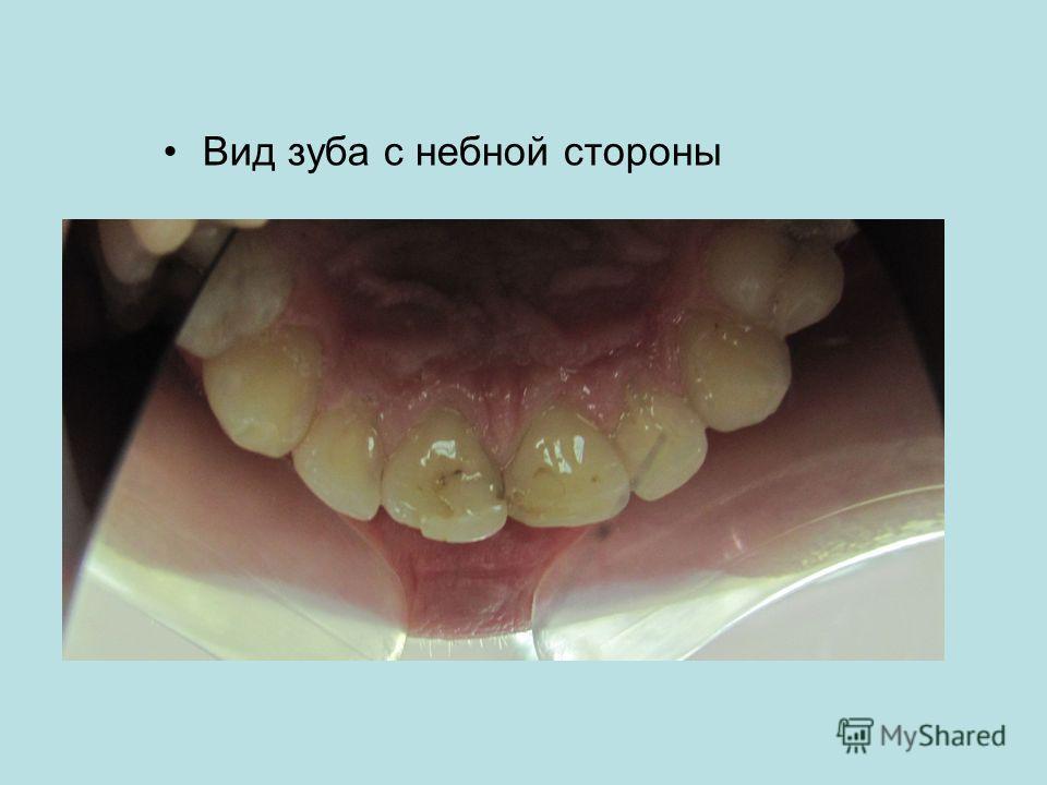 Вид зуба с небной стороны
