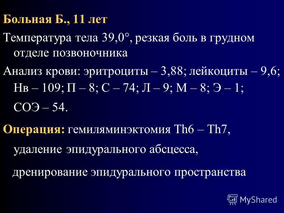 Больная Б., 11 лет Температура тела 39,0, резкая боль в грудном отделе позвоночника Анализ крови: эритроциты – 3,88; лейкоциты – 9,6; Нв – 109; П – 8; С – 74; Л – 9; М – 8; Э – 1; СОЭ – 54. Операция: гемиляминэктомия Тh6 – Тh7, удаление эпидурального
