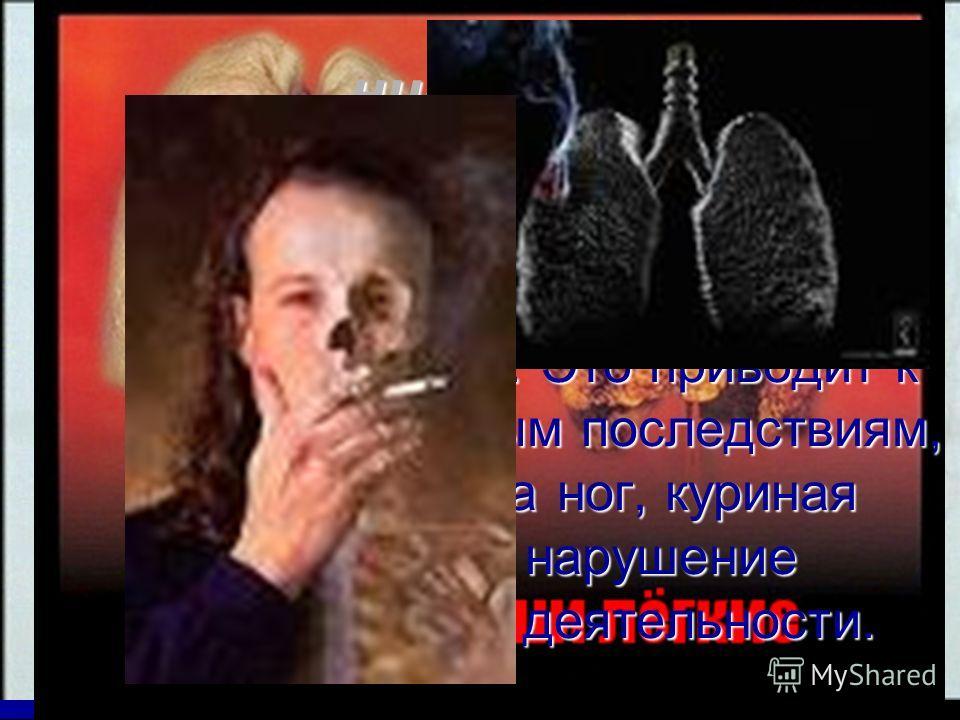 никотин Поражает нервную и кровеносную системы, органы дыхания, чувств и пищеварения. Это приводит к таким страшным последствиям, как гангрена ног, куриная слепота, нарушение умственной деятельности.