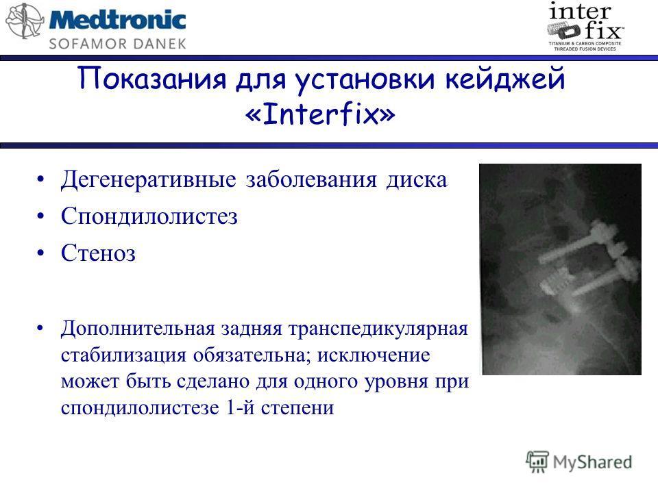 Показания для установки кейджей «Interfix» Дегенеративные заболевания диска Спондилолистез Стеноз Дополнительная задняя транспедикулярная стабилизация обязательна; исключение может быть сделано для одного уровня при спондилолистезе 1-й степени