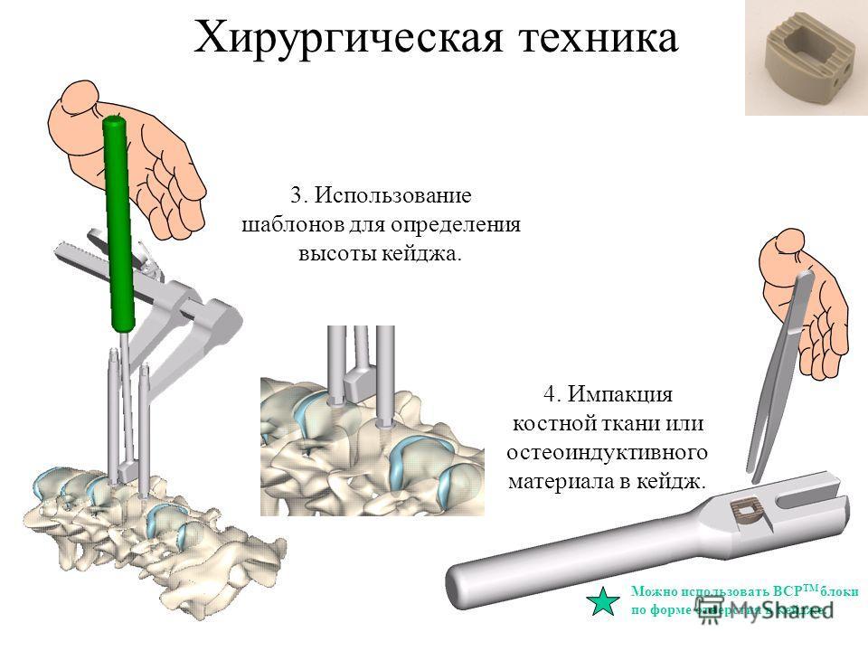 3. Использование шаблонов для определения высоты кейджа. 4. Импакция костной ткани или остеоиндуктивного материала в кейдж. Можно использовать BCP TM блоки по форме отверстия в кейдже. Хирургическая техника