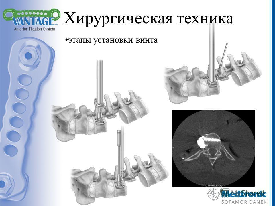 Хирургическая техника этапы установки винта