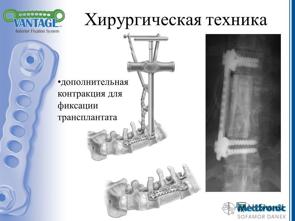 Хирургическая техника дополнительная контракция для фиксации трансплантата
