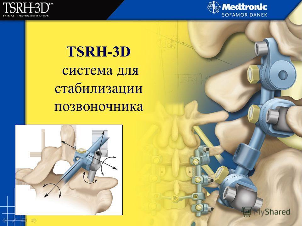 TSRH-3D система для стабилизации позвоночника