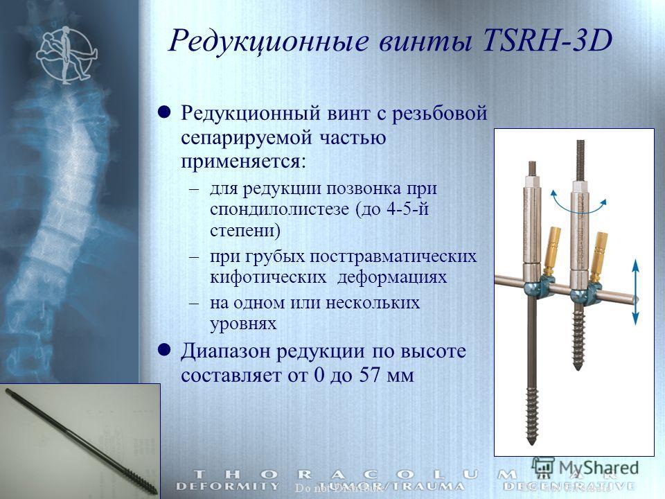 Редукционные винты TSRH-3D lРедукционный винт с резьбовой сепарируемой частью применяется: –для редукции позвонка при спондилолистезе (до 4-5-й степени) –при грубых посттравматических кифотических деформациях –на одном или нескольких уровнях lДиапазо