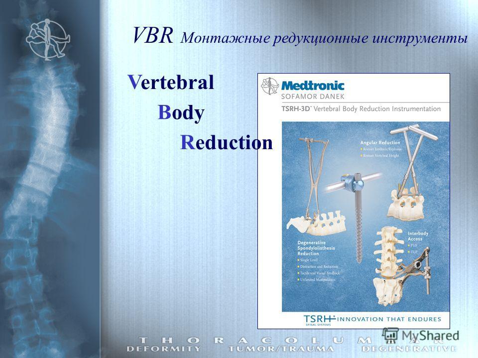 VBR Монтажные редукционные инструменты Vertebral Body Reduction