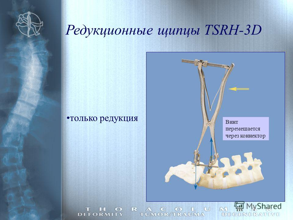 Винт перемещается через коннектор только редукция Редукционные щипцы TSRH-3D