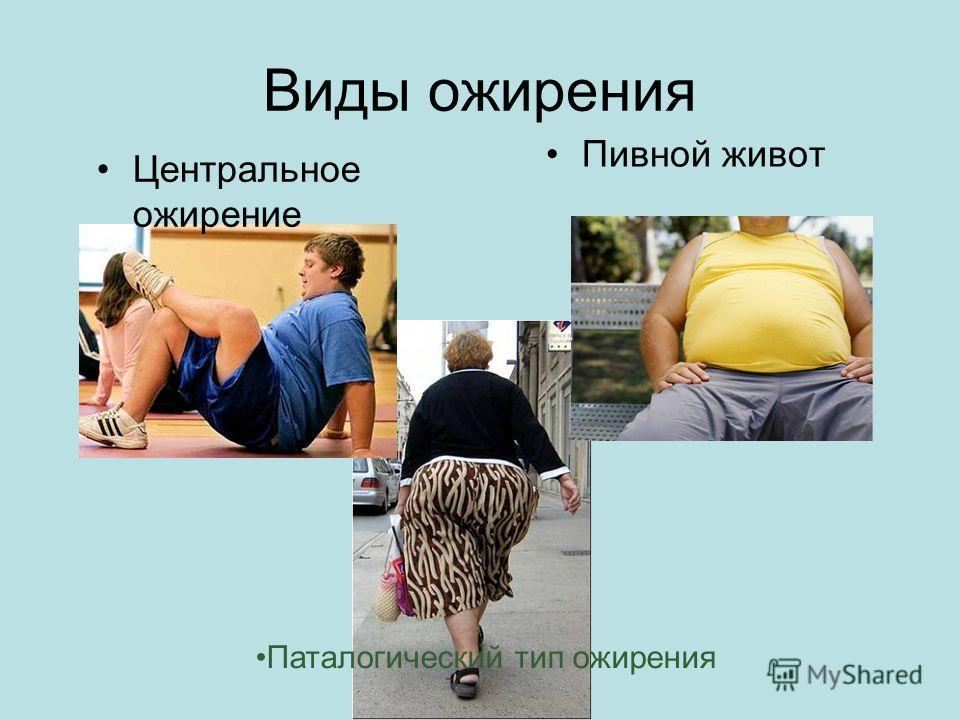 Виды ожирения Центральное ожирение Пивной живот Паталогический тип ожирения