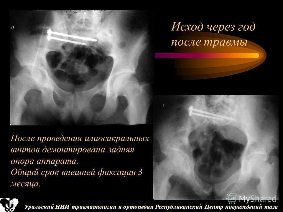 Уральский НИИ травматологии и ортопедии Республиканский Центр повреждений таза После проведения илиосакральных винтов демонтирована задняя опора аппарата. Общий срок внешней фиксации 3 месяца. Исход через год после травмы