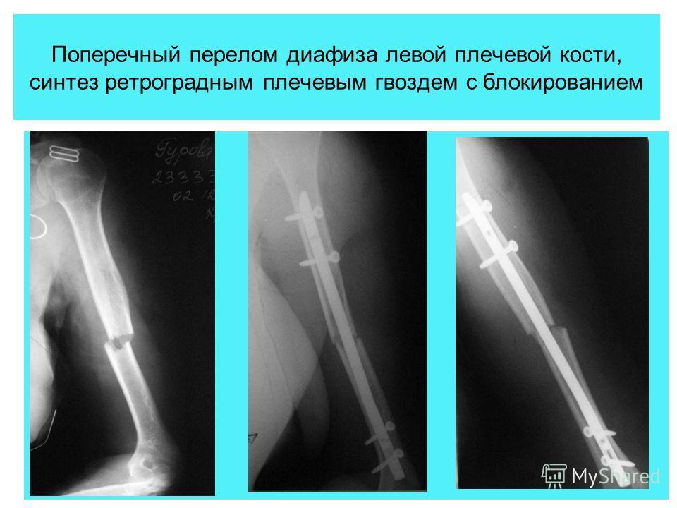 Поперечный перелом диафиза левой плечевой кости, синтез ретроградным плечевым гвоздем с блокированием