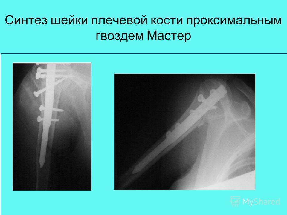Синтез шейки плечевой кости проксимальным гвоздем Мастер