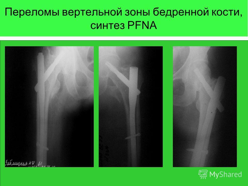 Переломы вертельной зоны бедренной кости, синтез PFNA