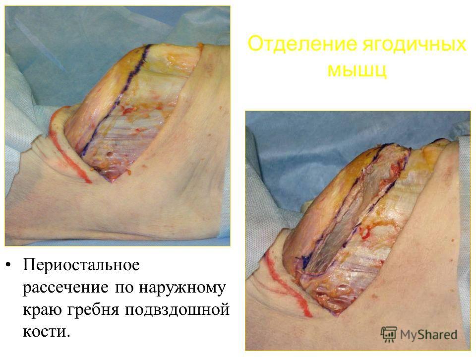 Отделение ягодичных мышц Периостальное рассечение по наружному краю гребня подвздошной кости.