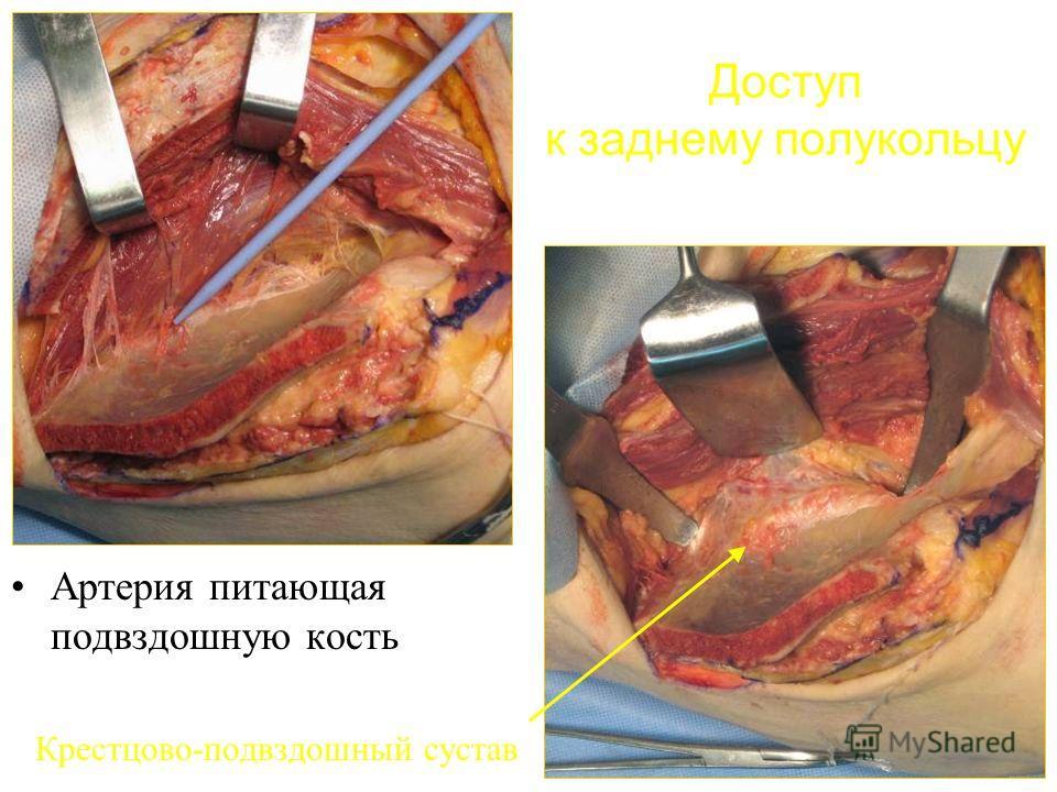 Доступ к заднему полукольцу Артерия питающая подвздошную кость Крестцово-подвздошный сустав