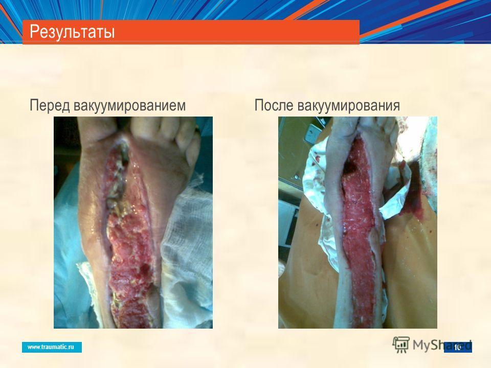 www.traumatic.ru Результаты Перед вакуумированиемПосле вакуумирования 10