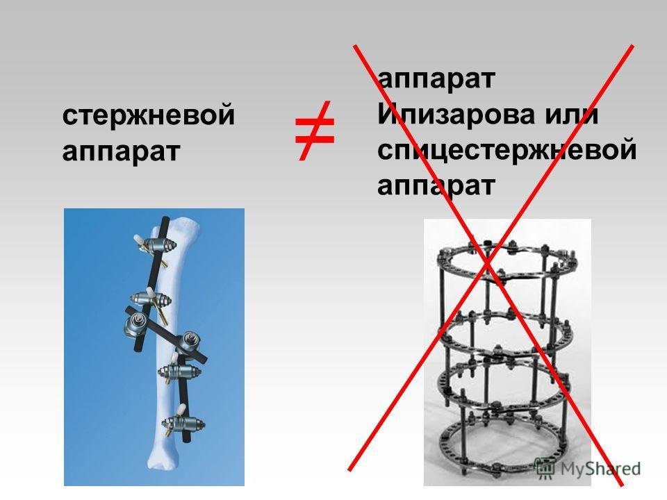 стержневой аппарат аппарат Илизарова или спицестержневой аппарат