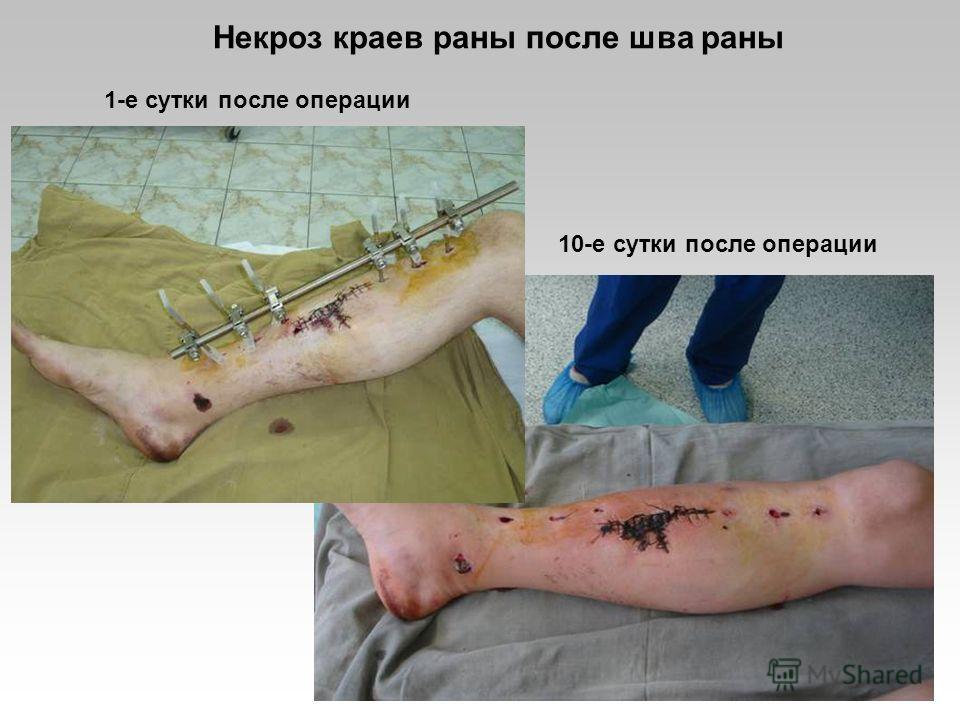 1-е сутки после операции 10-е сутки после операции Некроз краев раны после шва раны