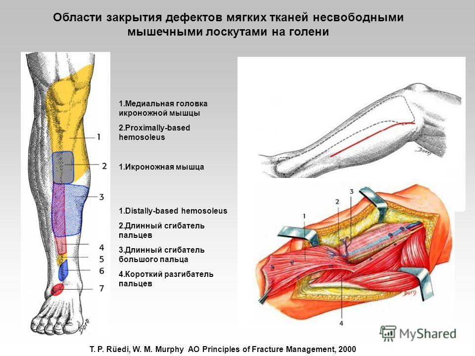 T. P. Rüedi, W. M. Murphy AO Principles of Fracture Management, 2000 1.Медиальная головка икроножной мышцы 2.Proximally-based hemosoleus 1.Икроножная мышца 1.Distally-based hemosoleus 2.Длинный сгибатель пальцев 3.Длинный сгибатель большого пальца 4.