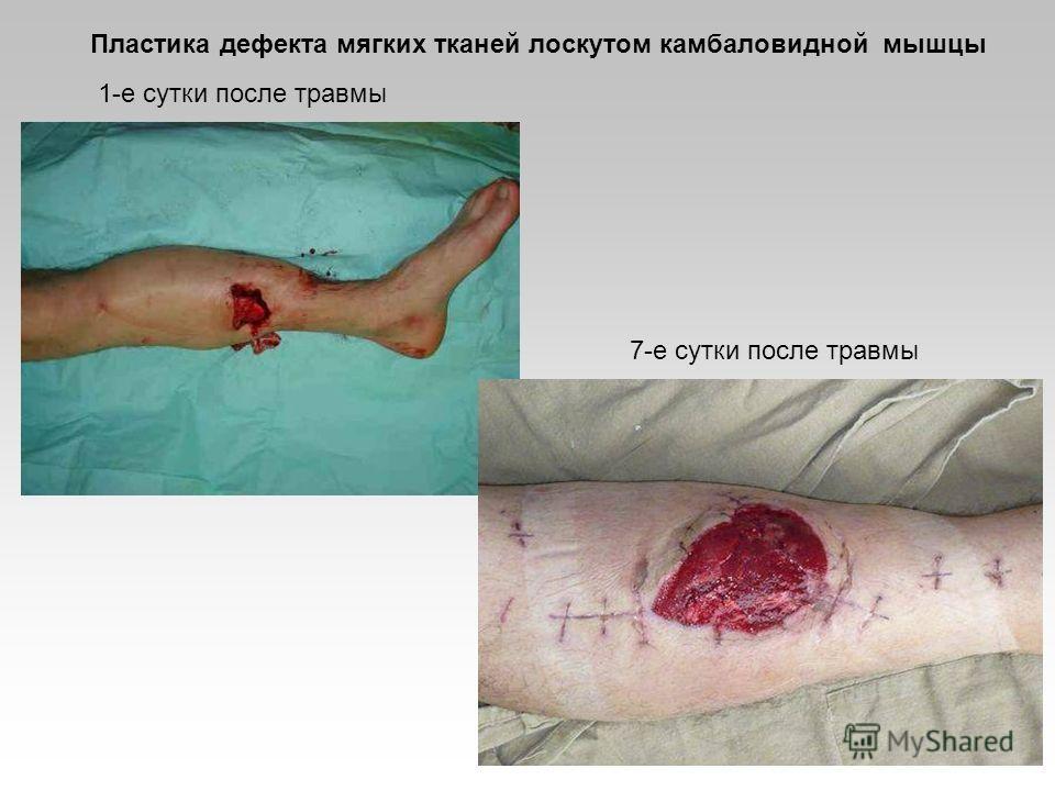 1-е сутки после травмы 7-е сутки после травмы Пластика дефекта мягких тканей лоскутом камбаловидной мышцы